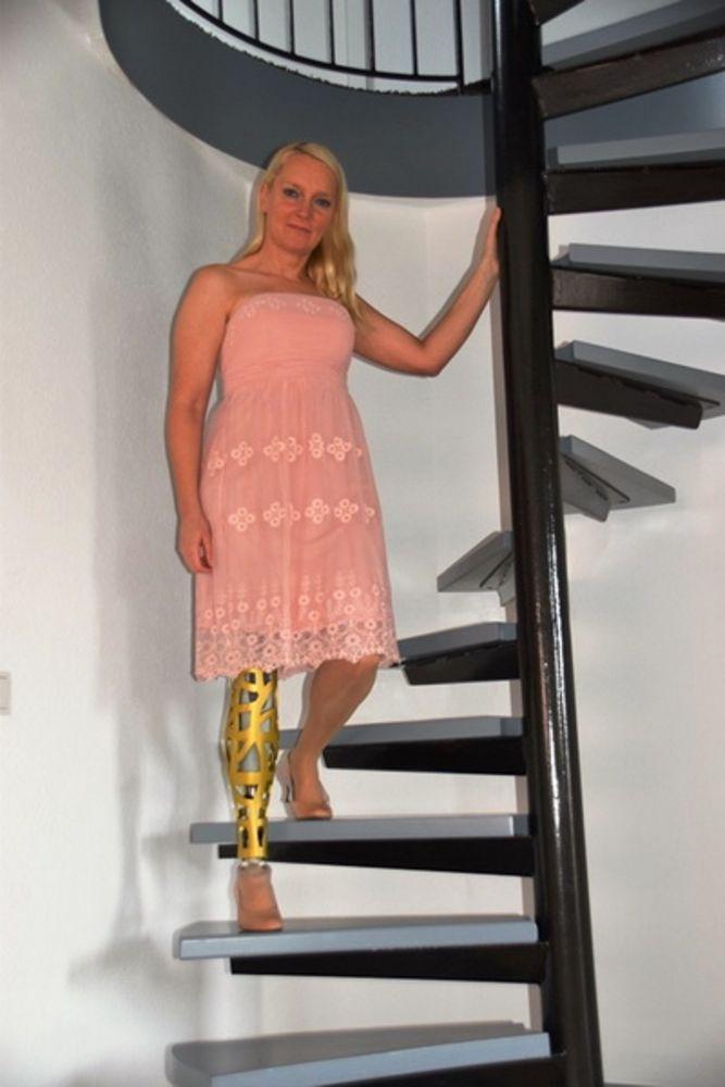Frauen oberschenkelamputierte moonpabackspik: Amputierte